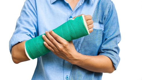 Cast Insurance